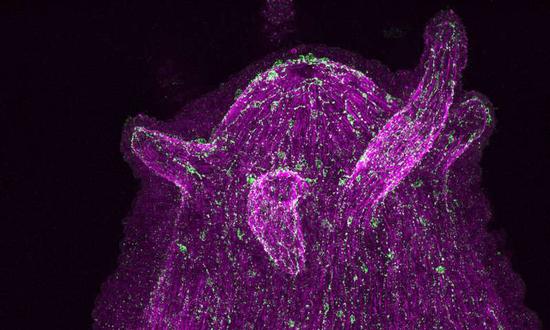 水螅(Hydra)弥散的神经网络中一簇神经元正在表达神经肽(绿色),通过特异性抗体能看见实现这些神经肽的可视化。其中,神经元的细胞核被标记成洋红色。图片来源:Alexander Klimovich
