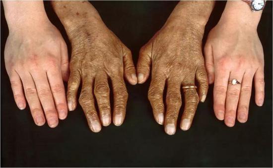 遗传性血色病的特征。图片来源:Clinical Photography/SCIENCE PHOTO LIBRARY