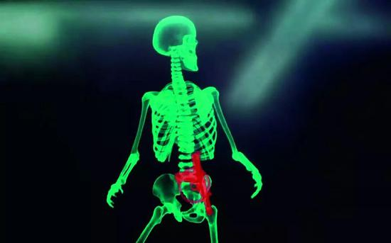 《周详回忆》中,男主角(施瓦辛格饰)议决X光的画面