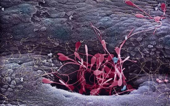 从睾丸网的腔洞中释放的健康精子(红色)(图片: Innerspace Imaging)