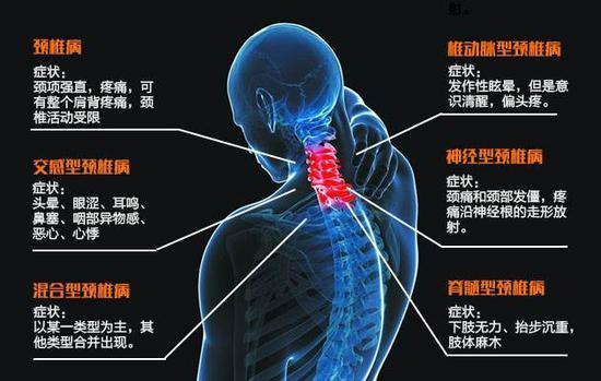 颈椎病最严重的症状_颈椎已经很宽容,别让手机逼得它忍无可忍!|颈椎病|颈椎|神经 ...