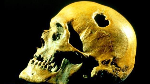 头部穿孔术是否是某种神秘仪式的一部分?