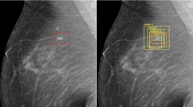 人工智能两分钟就能准确诊断脑瘤