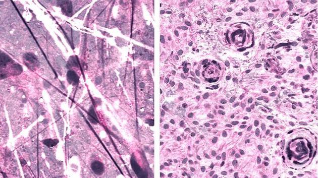 光学组织学图像显示了两种不同形式的脑瘤,弥漫性星形细胞瘤(左)和脑膜瘤(右)