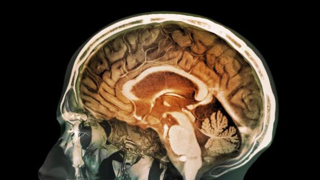 最新研究显示,人体大脑组织中存在微小的磁铁微粒,这些微粒可能是空气污染所致。研究分析表明,大脑中存在大量磁铁微粒,可能诱发阿尔茨海默症和其他神经退行性疾病。