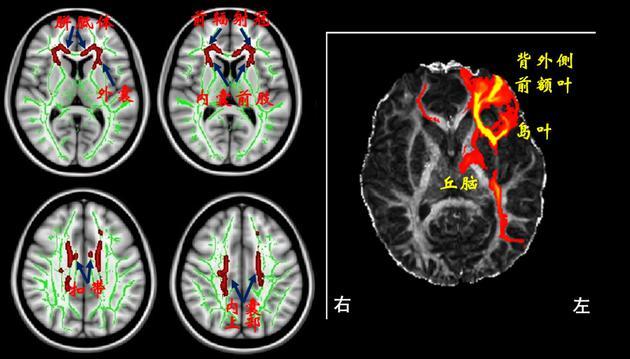 磁共振图像显示网瘾青少年大脑中的一些白质纤维束存在微结构异常(左图,箭头所指的红色区域)。其中,左侧外囊的异常部位是连接背外侧前额叶(DLPFC)、岛叶和丘脑这些脑区间信息交互的重要通道(右图)。网瘾越严重,此处的异常越显著