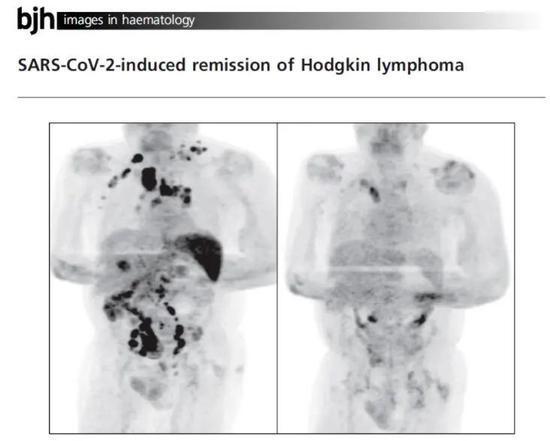 癌症晚期男子感染新冠后病情逆转 新冠病毒真能消灭肿瘤吗?