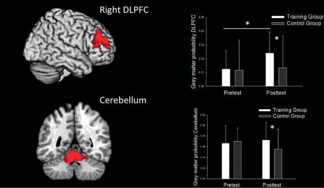 德国科学家研究发现:青少年在两个月内每天玩至少半个小时的《超级玛丽》,其右侧大脑的背外侧前额叶区(DLPFC)和小脑(cerebellum)中的灰质密度会增加,提示这些脑区在玩游戏的过程中得到了锻炼