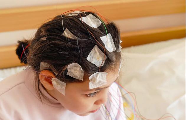 外接电极能够记录大脑活动。