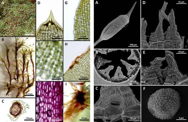 图为萨拉扎•艾伦最近发现的地衣新品种Octoblepharum peristomiruptum。她在去年十月发表在期刊《Phytokeys》上的论文中介绍了这一品种。