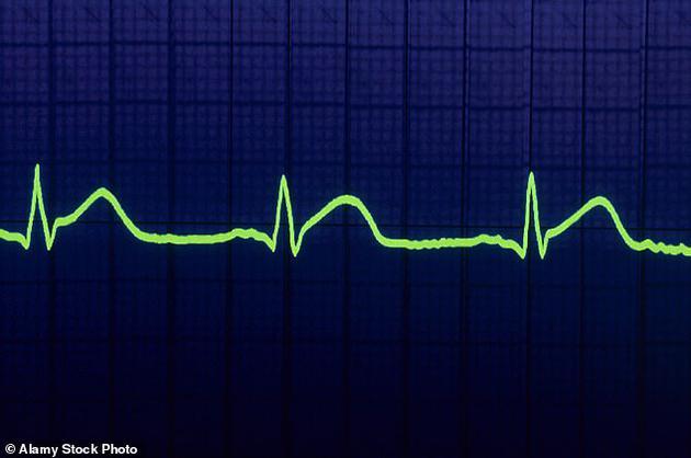 心跳模式是通过检测某个人的血液流动引起的红外光变化来收集的,它不仅高度准确,精确率大约95-98%,而且用途非常广泛。