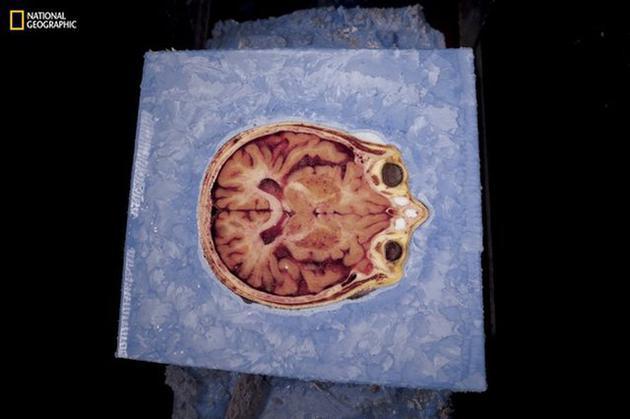 一片批准扫描前被保存在冰块中的头骨切片。图为大脑、眼球和鼻子的横截面鸟瞰图。将苏珊的尸体切成27000片花了60天时间。
