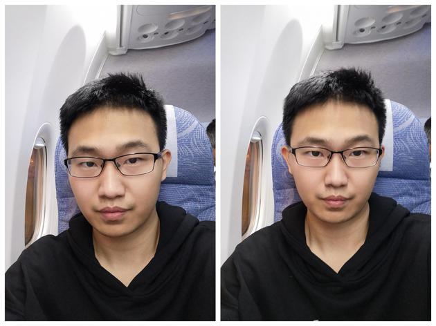 微整形(右)后,脸颊、鼻子、嘴都做了调整