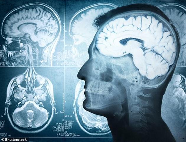 当多个人同时以大约每秒3个单词的速度说话时,大脑资源可能会受到限制,无法准确记录多个人同时说话的内容,这将导致人们在嘈杂的环境中会选择性地处理声音信息。