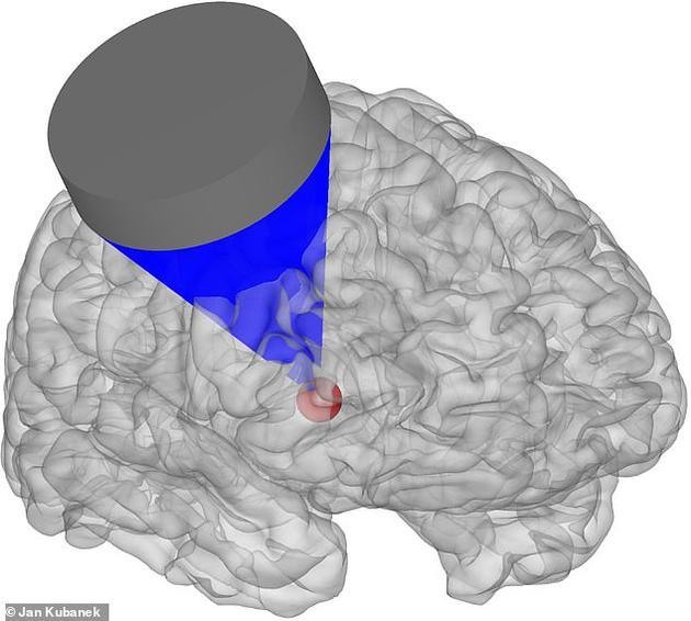 通过将超声波脉冲指向大脑额叶皮层部分,可以影响猕猴在计算机化选择任务中的判断,让它们在两个任务中选择一个。