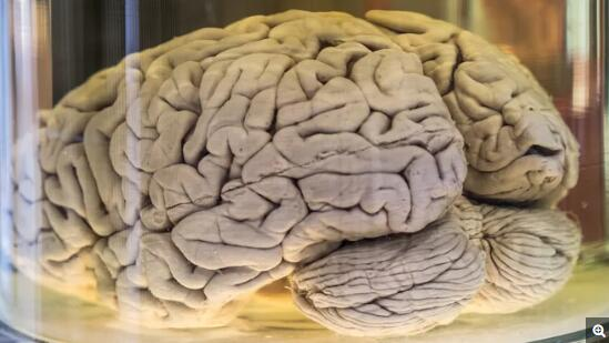 褶皱的形成不仅取决于大脑皮层总体的生长,也取决于褶皱部位的物理属性。