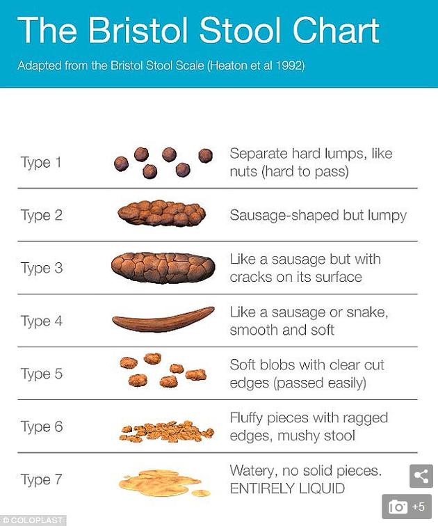 """图中是""""布里斯托尔粪便测量表"""",将粪便分类为七种类型。"""