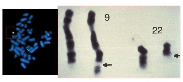 费城染色体