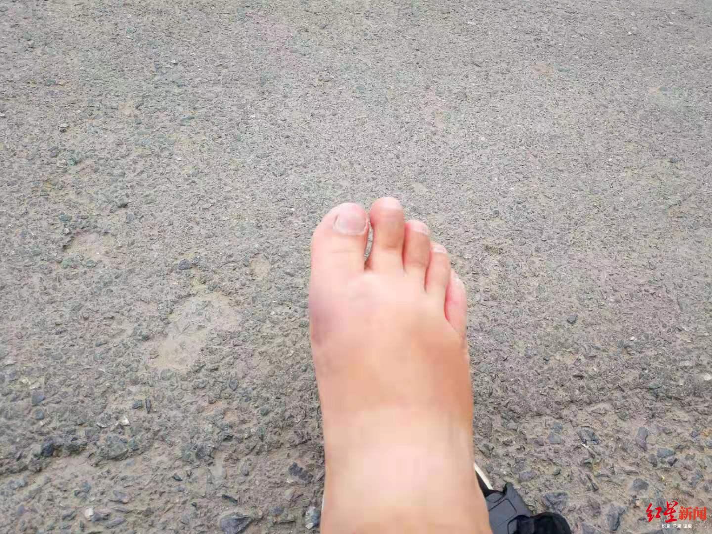 ↑脚部被撞