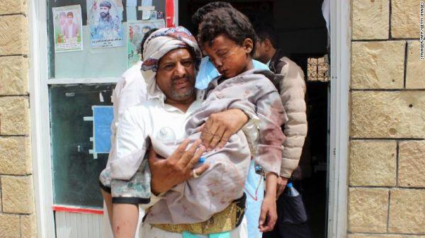 空袭发生后,有人抱着受伤的小男孩。
