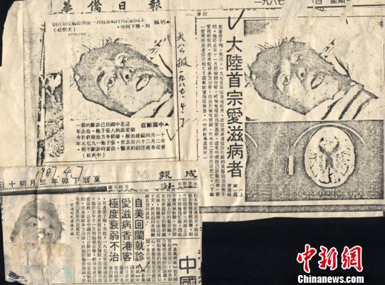 境表媒体刊发的中新社有关报道。 福建省立医院供图 摄