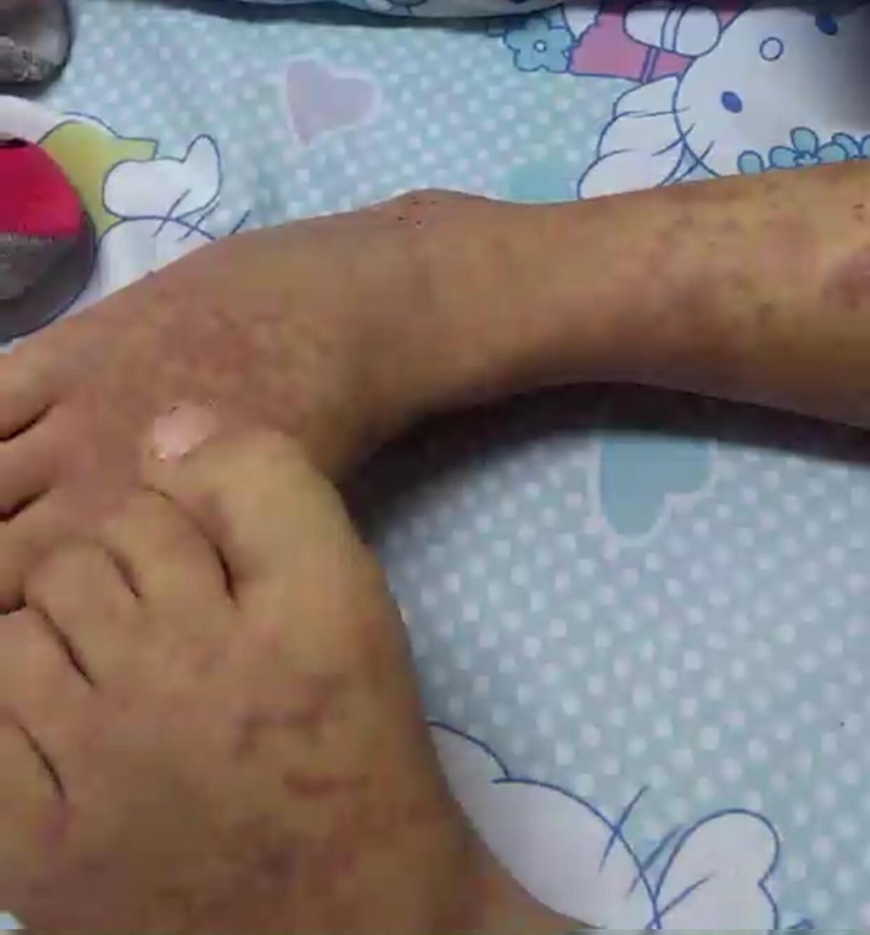 别名儿童被确诊为过敏性紫癜仍在批准治疗。 受访者供图