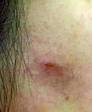 胳膊被玻璃划伤图片_苹果手机钢化膜碎裂扎伤脸|女士|手机|iPhone_新浪新闻