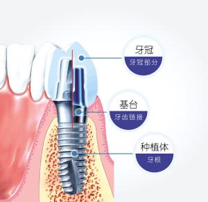 重庆种植牙_聚焦单/多颗牙缺失种植,缺牙者可申请援助|援助|口腔|缺失_新浪 ...