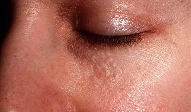 小妹妹人体艺术_自媒体 > 正文     人体汗腺遍布全身皮肤,包括手掌,足底和小妹妹.