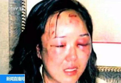 赵燕女士当时被打后的照片