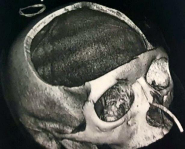 x光片显示了她头骨上的大洞(图源:《镜报》)