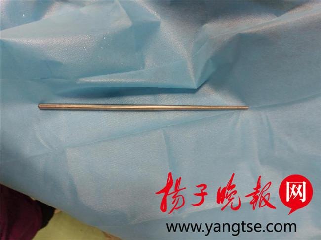 【视频】想催吐不锈钢筷却不慎滑进食道 多次模拟手术终取出