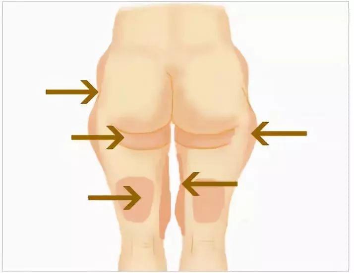 人体臀体_因为人体腹部,臀部脂肪较为集中,所以它通过分割设计,预留了足够的松