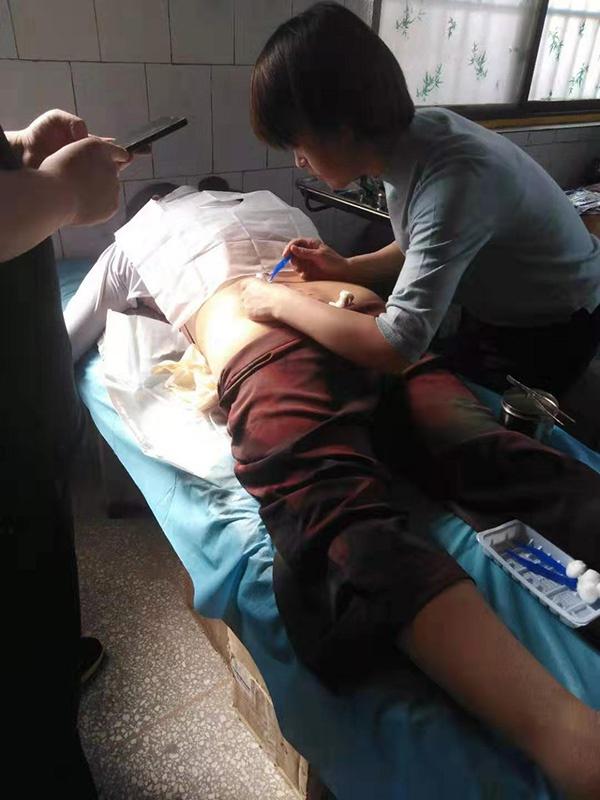 患者针灸后出现皮肤问题,早期在付里庄医院治疗。 受访者 供图
