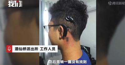 北京追求耳蜗当事人回答营销质疑,酒仙桥派出所做事人员证实已报案。 图片来自新京报吾们视频截图
