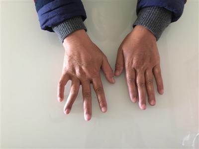李秀华的右手平摊时,无法十足并拢