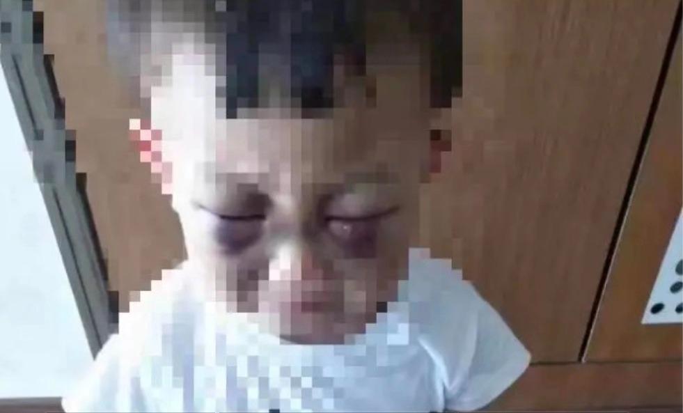 山东烟台一3岁男童多次遭继母虐待。 受访者供图