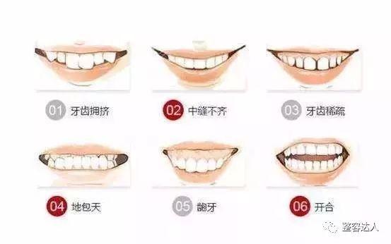 牙齒矯正會影響臉型嘛