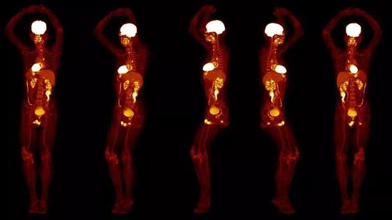 An improved medical device takes only a few tens of seconds to complete a full-body scan. The picture shows the scanned image generated by the device.  Source: University of California, Davis,